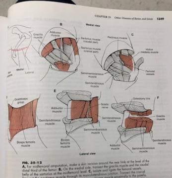 Fletcher Textbook